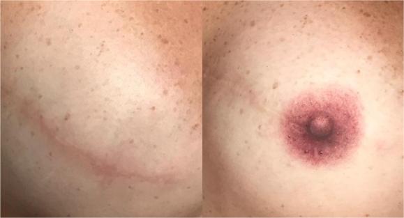 Micropigmentação Paramedical (Recontrução de Aréola)